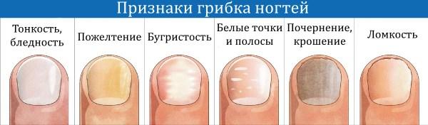«Аморолфин» - лак для лечения грибка ногтей. Инструкция по применению, отзывы, цена