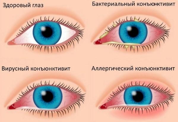 Чем лечить покраснение глаз. Народные средства снятия воспаления слизистой оболочки глаза