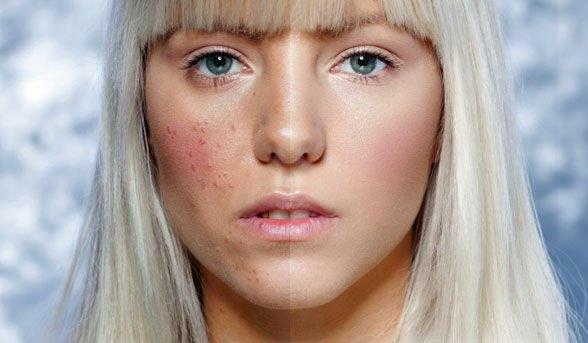 Пероральный дерматит на лице. Причины и лечение препаратами и народными средствами
