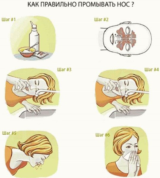 Как побороть сильный насморк, когда льется из носа. Народные средства и лекарства