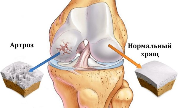 Причины боли в левом плече и предплечье. Резкая, ноющая, тупая боль и рекомендации врачей