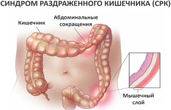 Причины и лечение кишечника при вздутии живота после еды. Симптомы заболеваний органов ЖКТ
