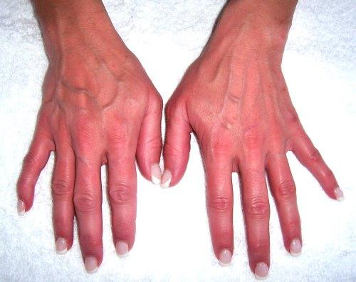Причины потливости ладоней рук у взрослых. Возможные заболевания, нарушения здоровья