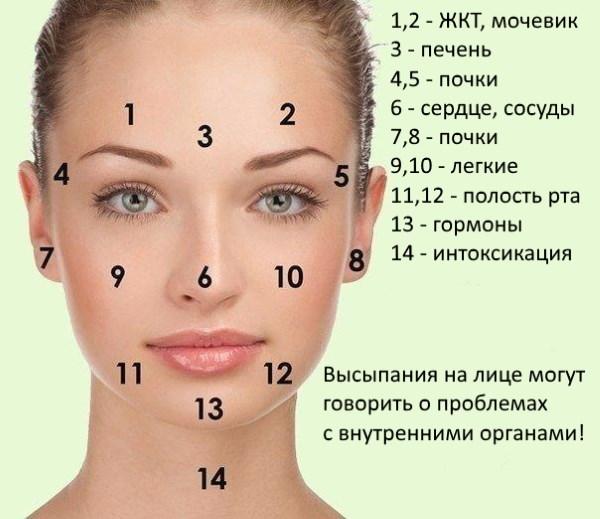 Прыщи на коже лица у взрослых. Лечебная диета, лекарства и народные рецепты избавления от прыщей