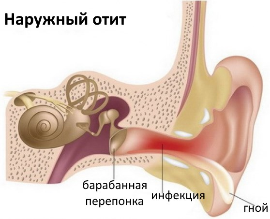 Шелушение и образование корочек в ушах. Причины и лечение перхоти и сухой кожи в ушах