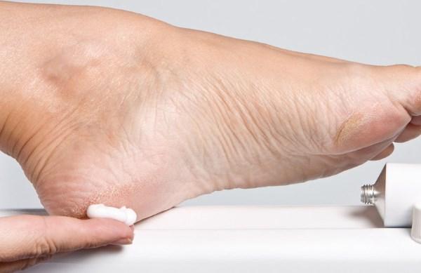 Шпоры на пятках. Причины и лечение медикаментами, народными средствами, ультрозвук, лазеротерапия