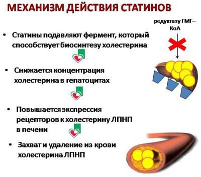 Статины – препараты последнего поколения для нормализации уровня холестерина. Названия, описание