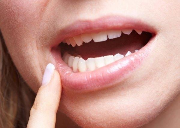 Стоматит во рту у взрослых. Список действенных препаратов для быстрого лечения