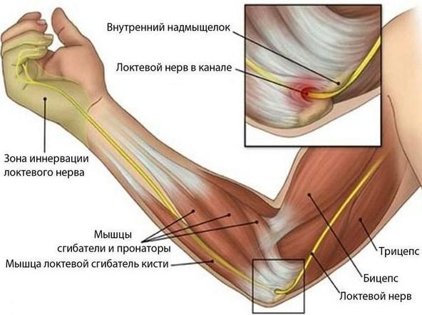 Боли в локтевом суставе правой руки. Схема лечения болезни, рентген, препараты
