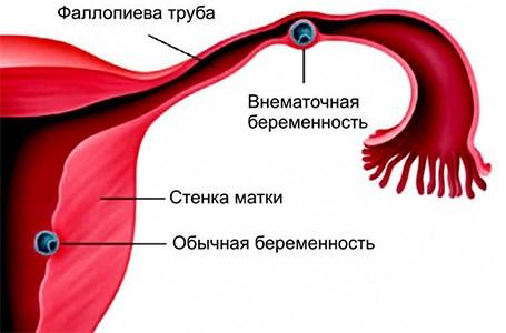 Тянущие боли внизу живота слева и справа thumbnail