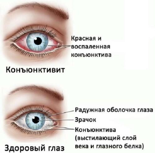 Чем лечить покраснение глаз в домашних условиях. Примочки, компрессы, капли