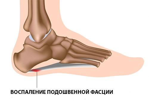 Артрит мелких суставов и пятки стопы симптомы и лечение