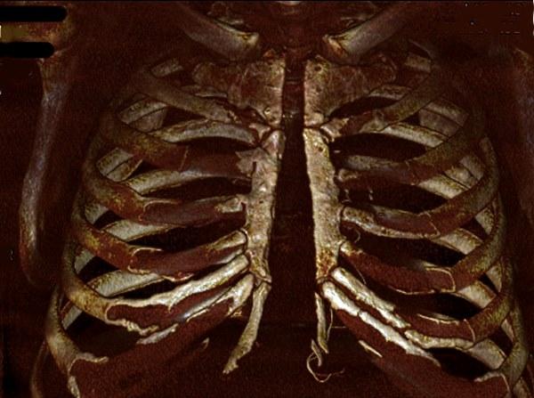 Корсеты после операции на сердце. Виды, размеры мужских и женских корсетов. Правила использования