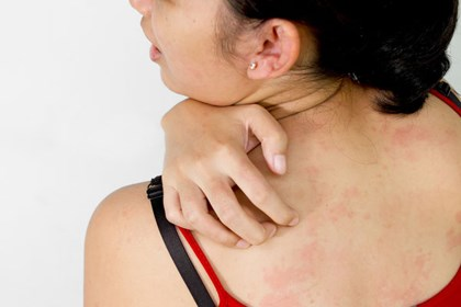 Мазь против воспаления кожи