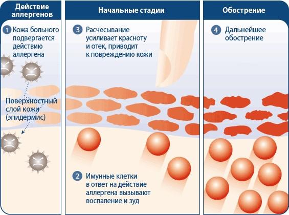 Мази против аллергии на коже лица, рук. Список не гормональных средств
