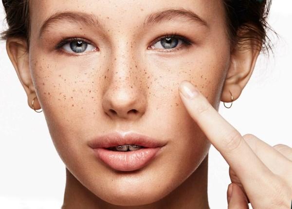 Пигментные пятна на лице. Как убрать, отбелить кожу в домашних условиях. Лечение народными средствами