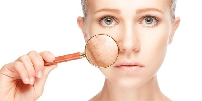 Пигментные пятна на лице возрастные, белые. Причины, лечение в домашних условиях