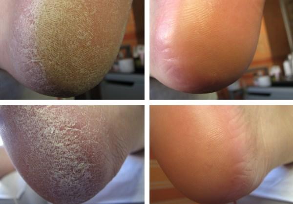 Трещины на пятках лечение в домашних условиях перекисью водорода thumbnail