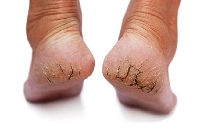 Крем против трещин на ногах
