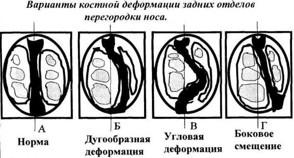 Храп у женщин - апноэ. Причины и лечение при беременности. Народные средства, лазер