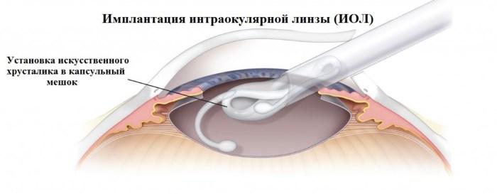 Замена хрусталика при катаракте глаза. Послеоперационный период, отзывы