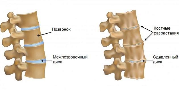 Артроз шейного отдела позвоночника. Симптомы и лечение