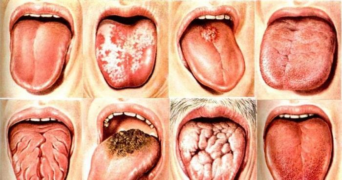 Белый, бело-желтый налет на языке у взрослых. Причины, лечение, как устранять