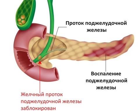 Боль в поджелудочной железе. Признаки, симптомы воспаления. Как лечить поджелудочную