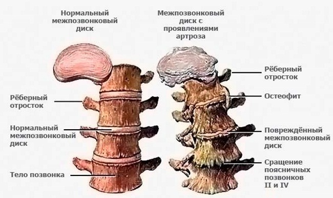 Боль в пояснице – причины и лечение