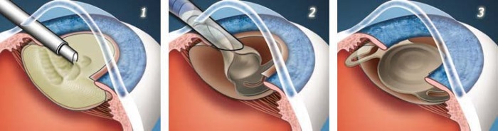 Катаракта и глаукома одна операция thumbnail