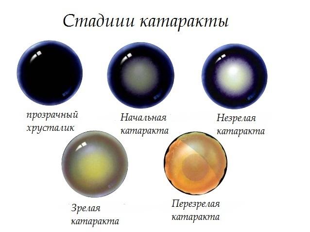 Глаукома и катаракта одновременно, что лучше: лечение или операция. Народные средства