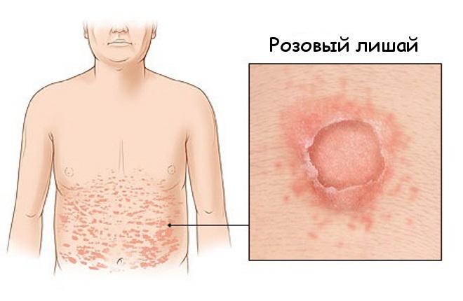 Красные пятна на коже. Аллергия, лишай или ещё что-то? Почему они чешутся. Причины аллергии