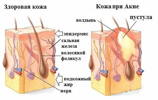 Левомиколевая мазь. Инструкция по применению