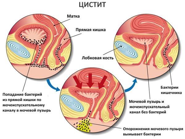 Психосоматика цистита. Причины и лечение у женщин
