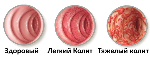 Температура рвота у детей thumbnail