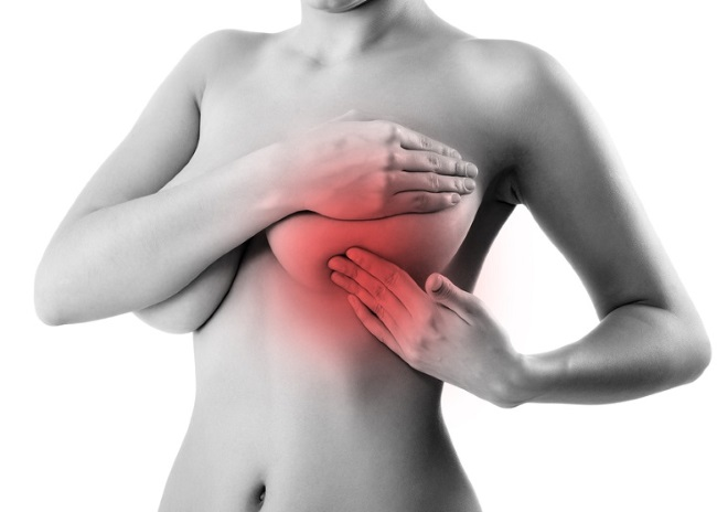 Может ли невралгия отдавать в молочную железу