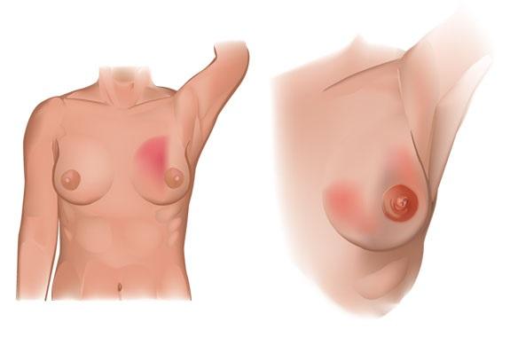 Боль в молочной железе справа у женщин. Причины при невралгии, остеохондрозе, климаксе