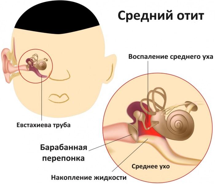 Боли в ухе у ребенка - что делать, чем лечить, первая помощь в домашних условиях. Капли