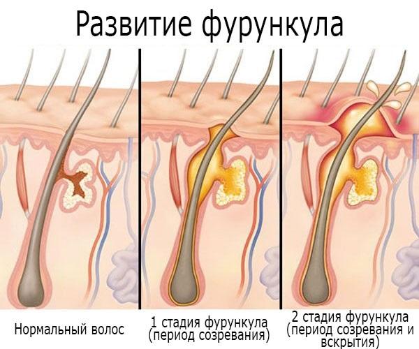 Фурункулез – что это такое, от чего появляется, как передается. Причины появления и симптомы у детей и взрослых. Заразен ли фурункулез