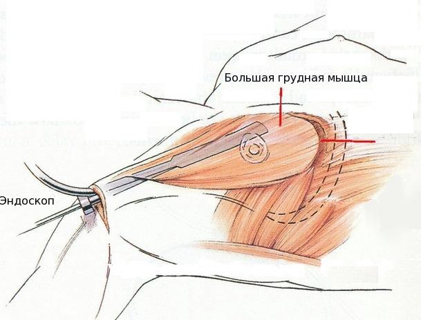 Гинекомастия у мужчин. Лечение без операции, операция по удалению. Фото шрамов