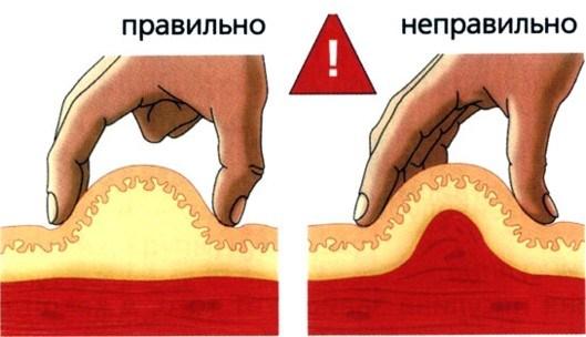 Как правильно делать уколы в ягодицу, попу внутримышечно ребенку, себе. Куда, как поставить, колоть