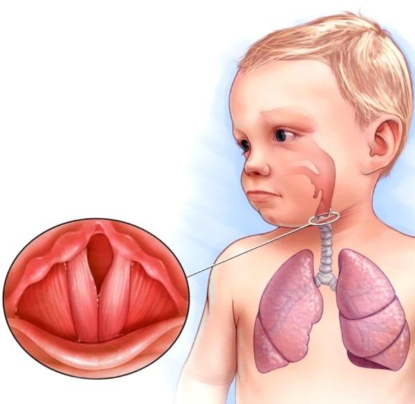 лечение сухого кашля у детей до года