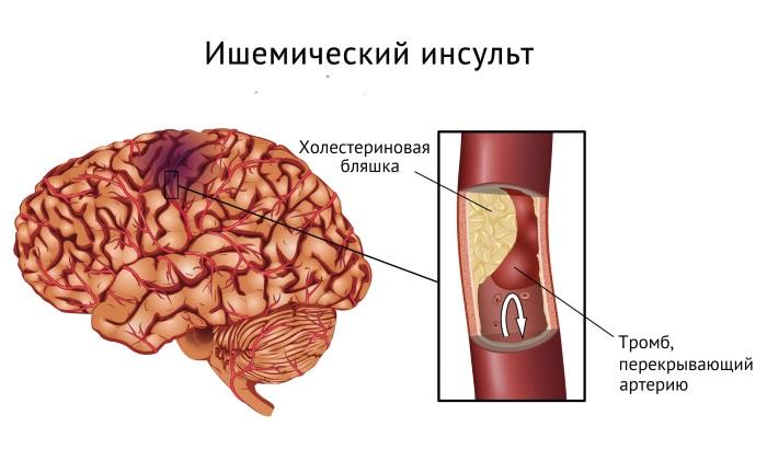 Судороги в ногах. Причины и лечение. От чего сводит икры, мышцы, пальцы, ночью, при беременности и что делать