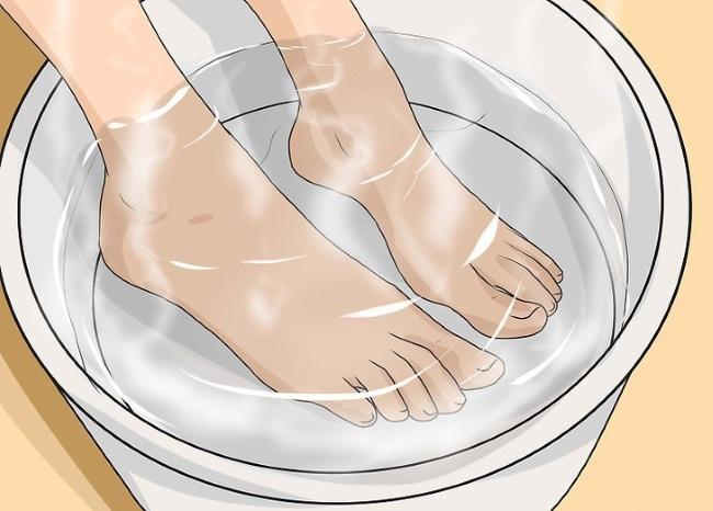 Как лечить мозоли на ногах, руках, пальцах, как избавиться от стержневой мозоли в домашних условиях