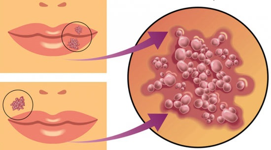 Цитомегаловирус - что это такое у детей, симптомы, как передается инфекция, последствия, лечение