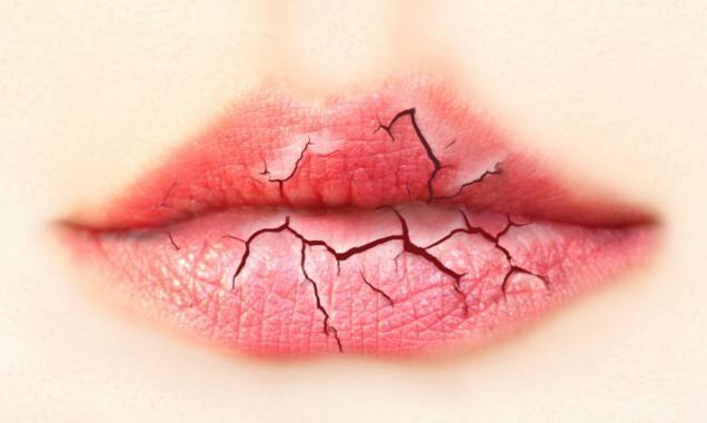 Почему постоянно сохнут губы и трескаются в уголках, шелушатся, сильно болят у женщин, ребенка, при беременности, причины и лечение