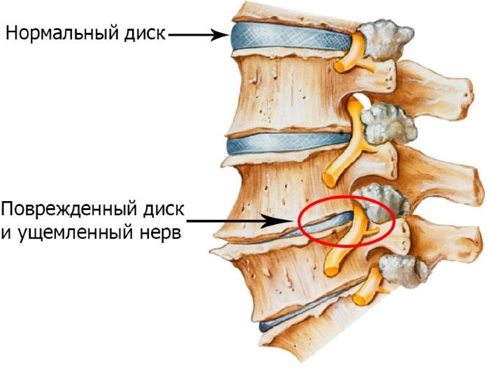 Боль под ребрами с левой, правой стороны, спереди, сбоку, сзади – что это и как лечить