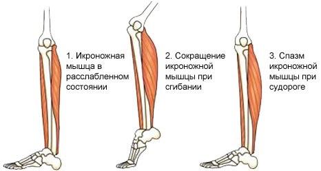 Причины и лечение, если сводит ноги, мышцы, икры, пальцы по ночам.