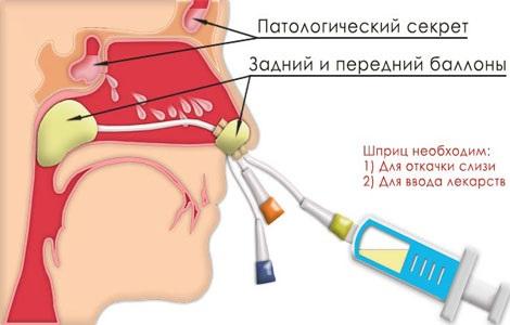 Гайморит - что это такое, симптомы, как лечить народными средствами, лекарственными препаратами у взрослых и детей