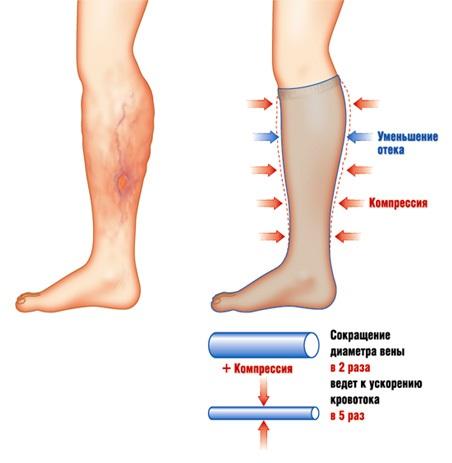 Компрессионные чулки от варикоза вен на ногах: показания к применению, виды, как их подобрать, одевать и носить